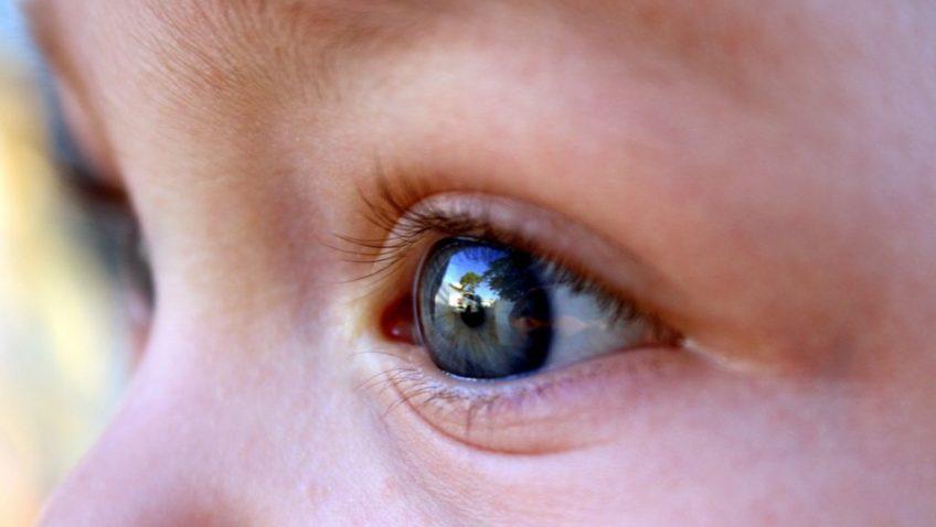 Tratamento precoce do glaucoma congênito